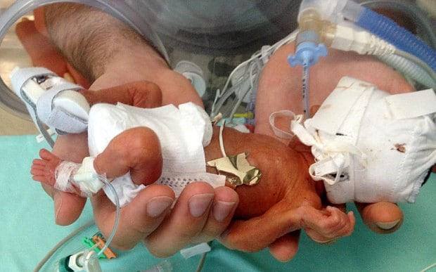 FRC Blog » Testimony on the Need for the Born-Alive ...