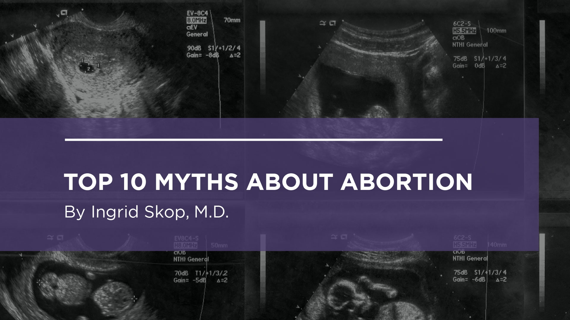 Top 10 Myths About Abortion
